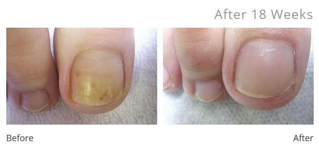 tincture nail fungus