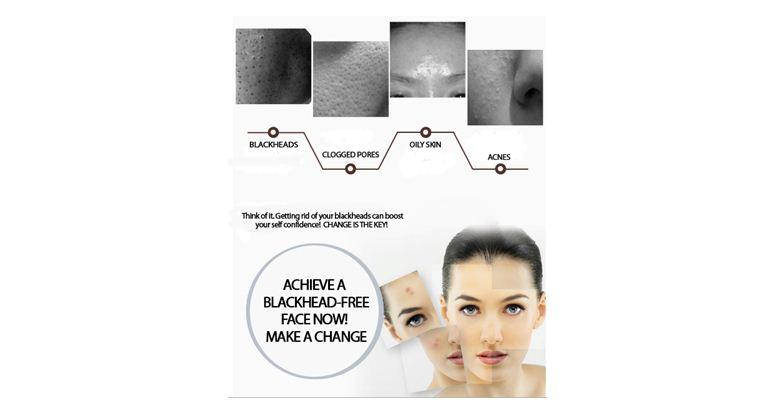 Blackhead free, Whitehead, Acne Clearance, Peeling, Suction