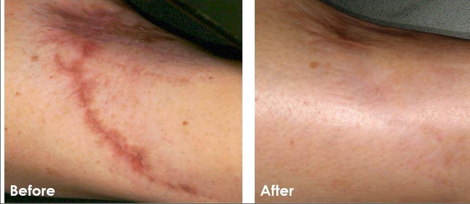 Oil review acne scars bio Bio Oil