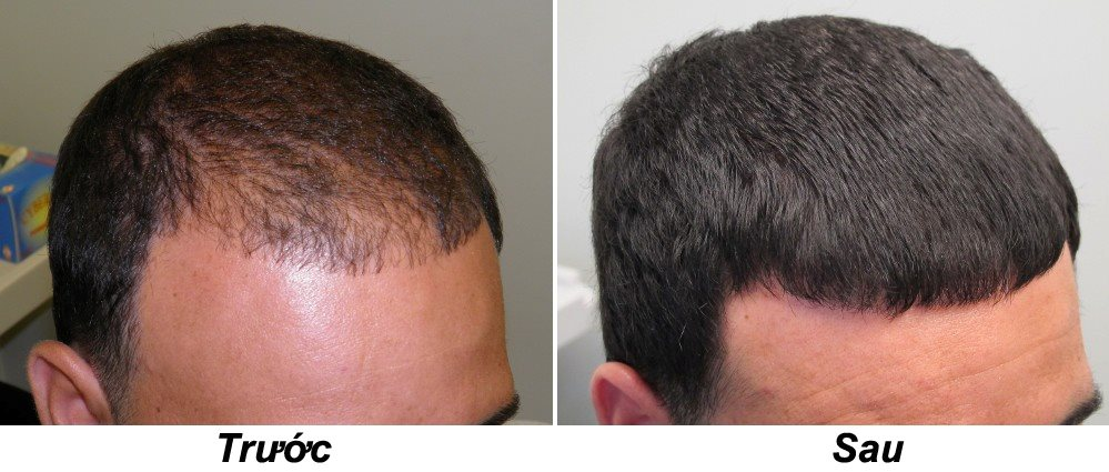 Плазмолифтинг для роста волос