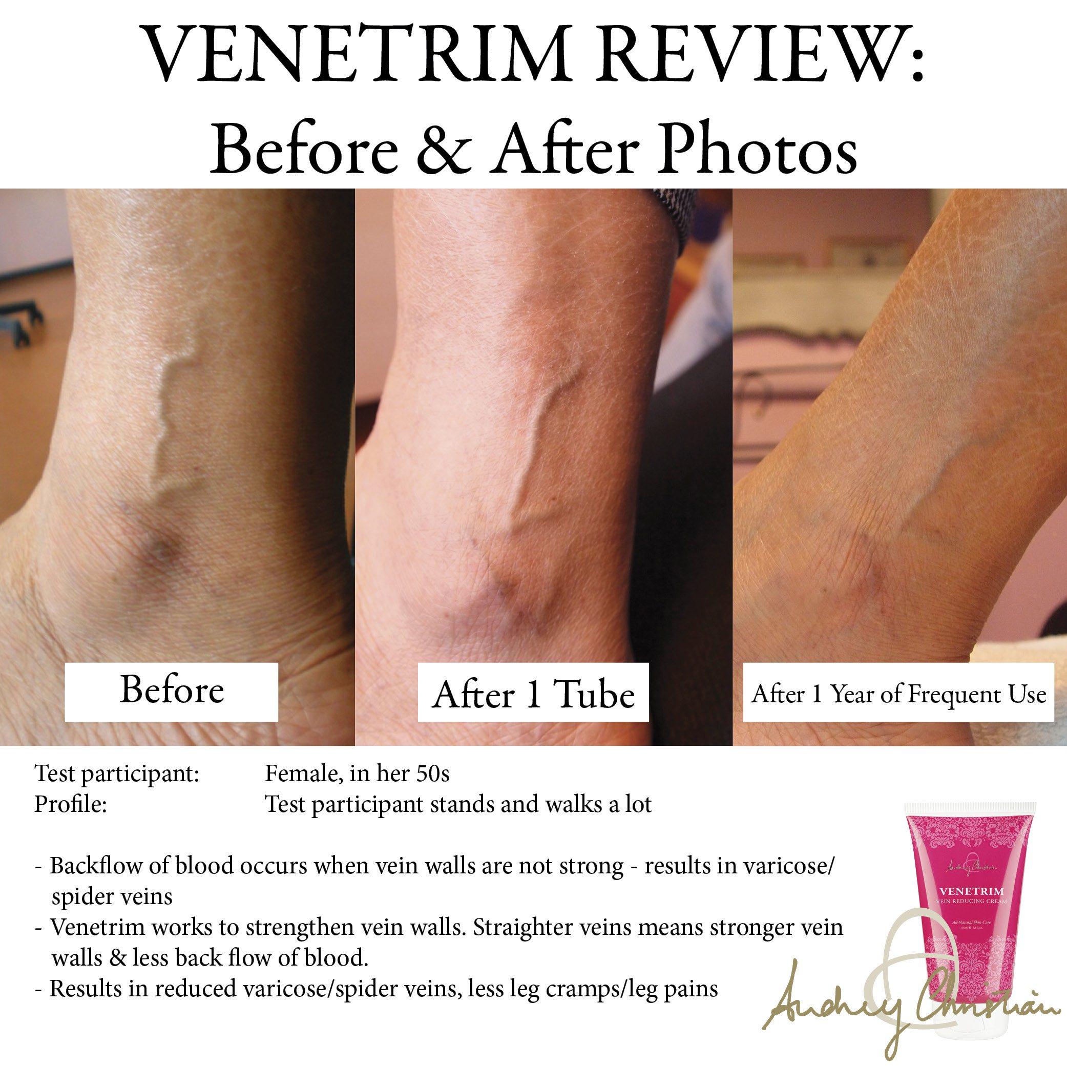 how to strengthen veins