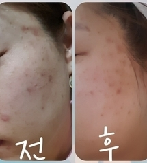 Buy Free Shipping Medicube Red Line Korea No 1 Skin Care Deals For Only S 79 9 Instead Of S 0