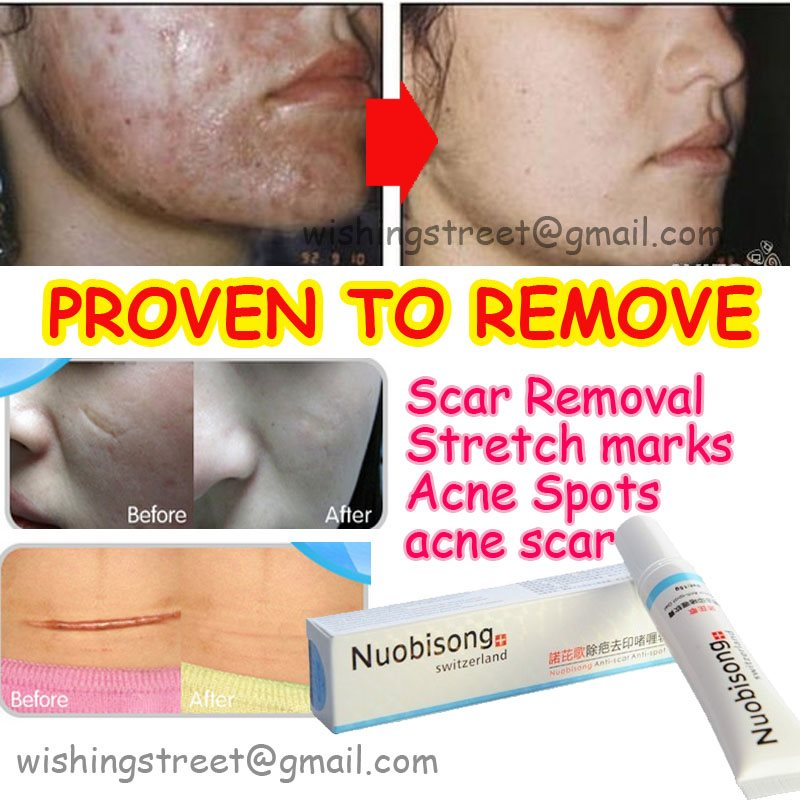 Buy Nuobisong Face Care Acne Scar Removal Cream Acne Spots