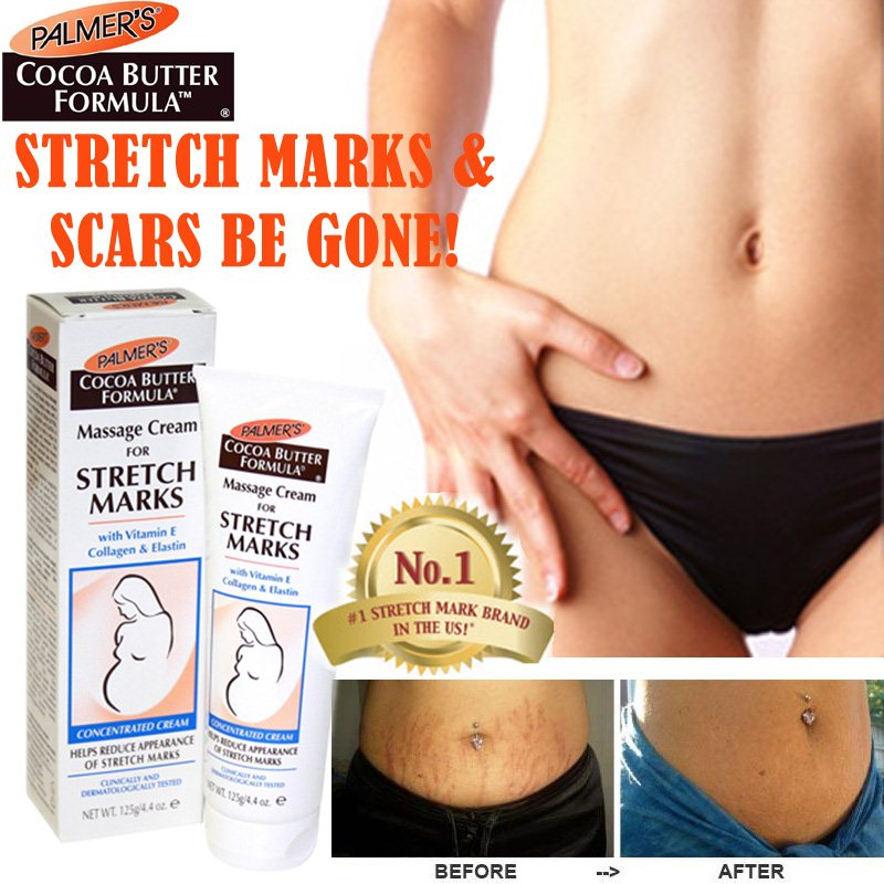 palmer lotion for stretch marks