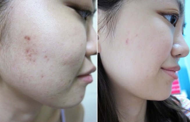 Tinh Chất Trị Nám SK-II Whitening Spots Specialist Concentrate - SK041