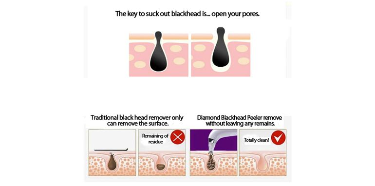Blackhead free, Whitehead, Acne Clearance, Peeling, Suction