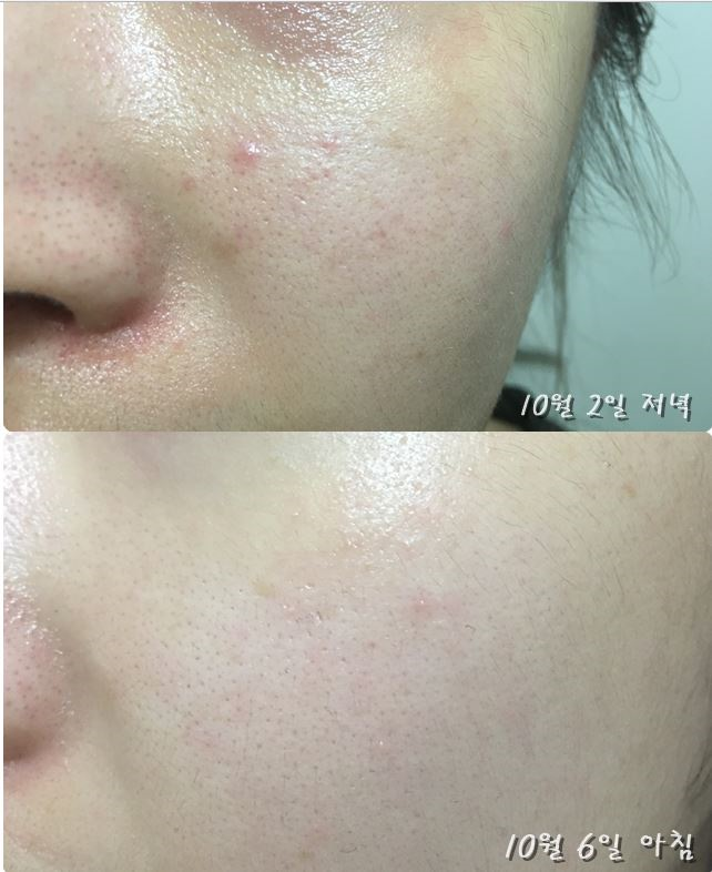 Image result for make prem ampoule, before after