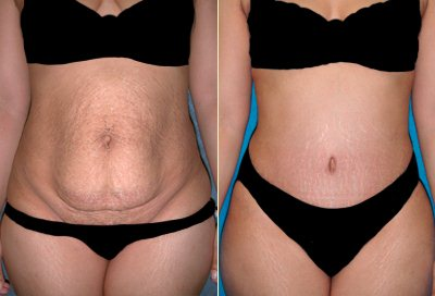 Slimming, Detox, before and after
