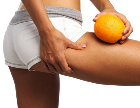Anti-Cellulite, Fat Freeze