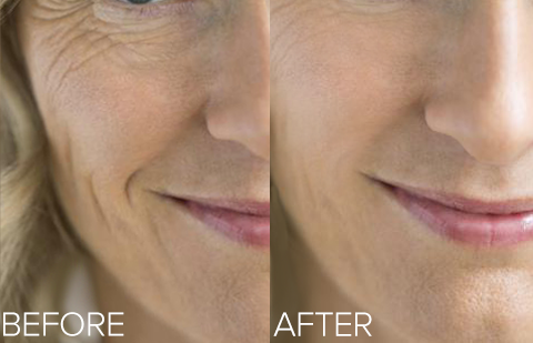 collagen, phytoceramide, before and after