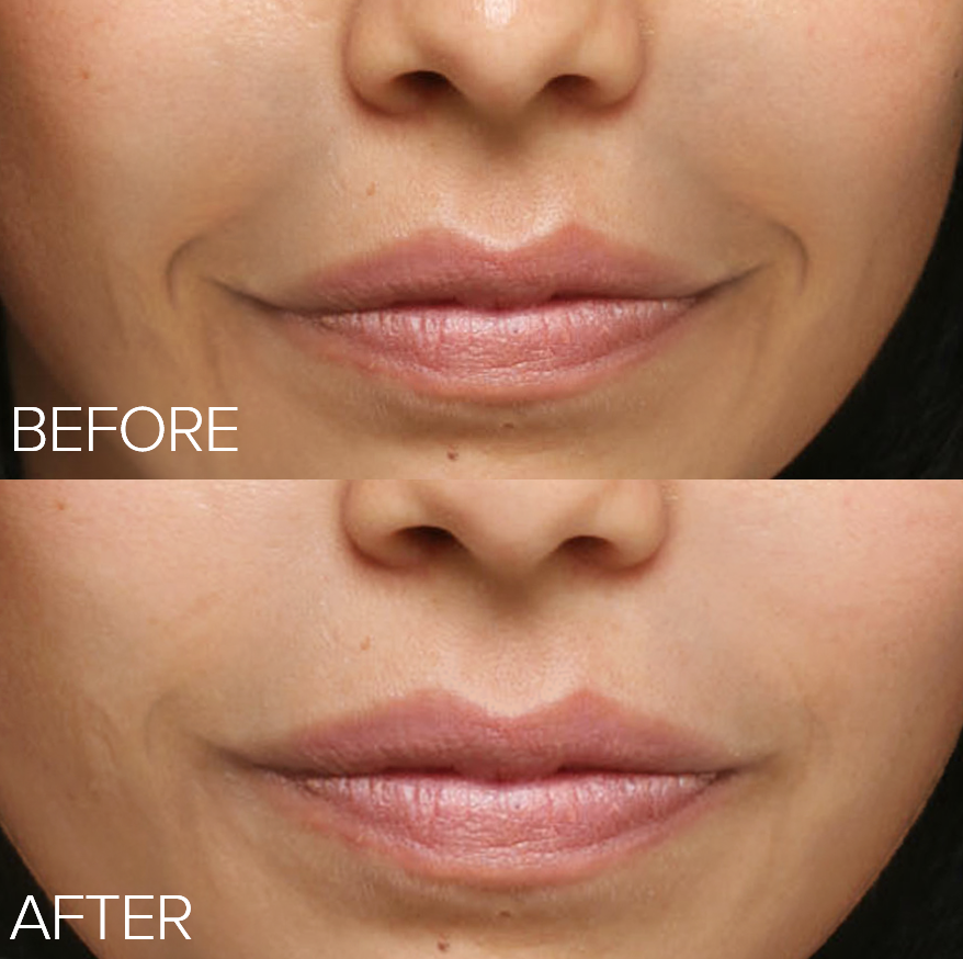collagen, before and after