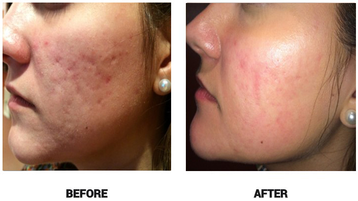 Acne Clearance, new mum stretch marks removal