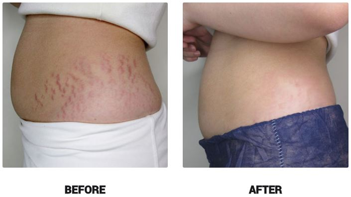 new mum stretch marks removal