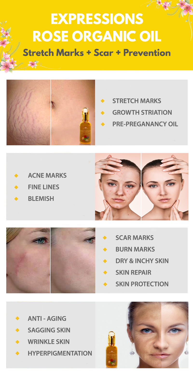 new mum, Stretch Marks Removal, Scar Marks Removal, Acne Clearance, new mum stretch marks removal